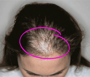 kadınlarda saç dökülmesi nasıl olur