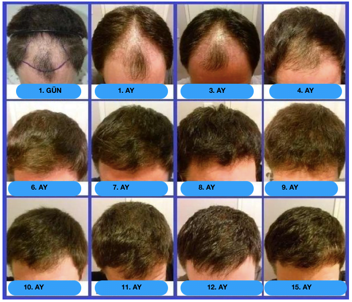 gün gün saç ekim sonuçları