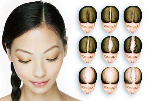 kadınlara saç ekimi