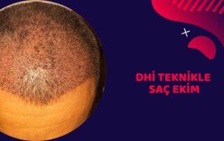 dhi teknikle saç ekim