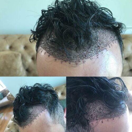 traş olunmadan saç ekimi