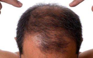 kimlere saç ekimi yapılmaz